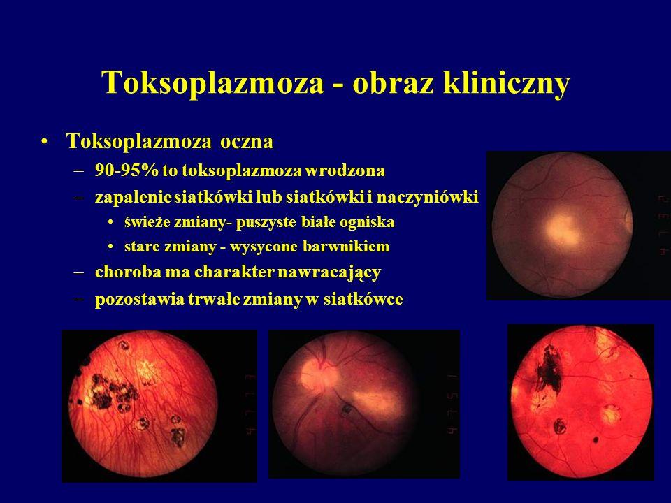 Toksoplazmoza - obraz kliniczny Toksoplazmoza oczna –90-95% to toksoplazmoza wrodzona –zapalenie siatkówki lub siatkówki i naczyniówki świeże zmiany-