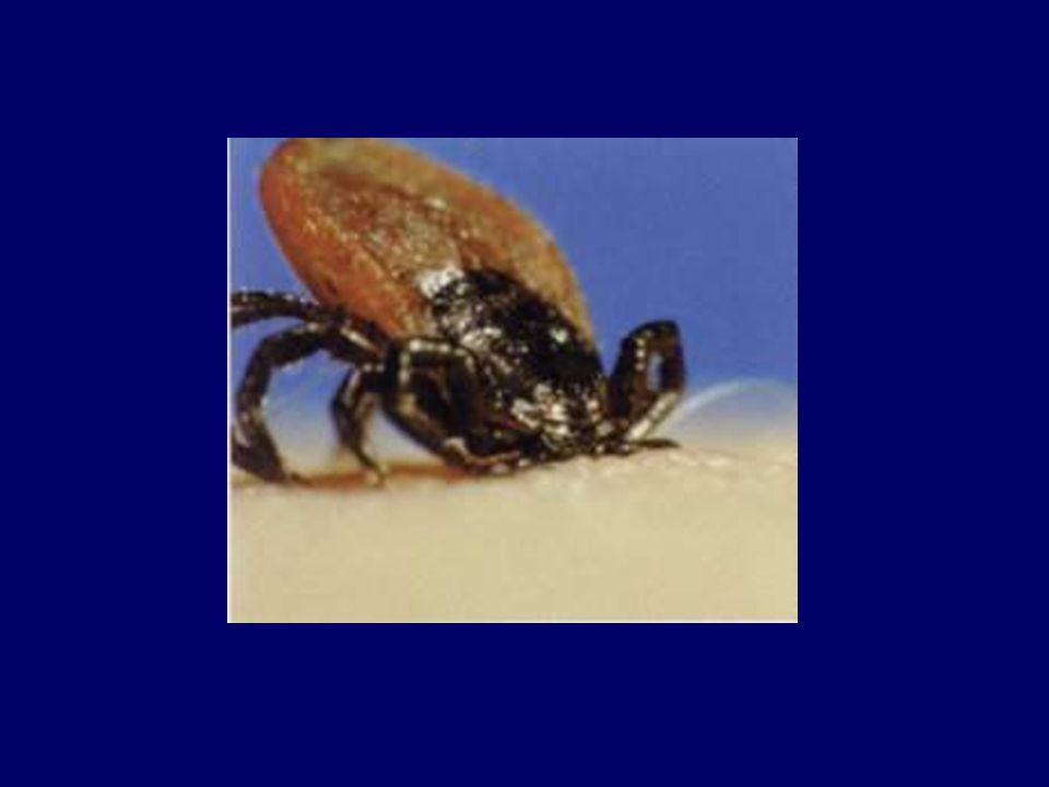 Wąglik (anthrax) - zapobieganie Dekontaminacja odzieży, pomieszczeń itp.
