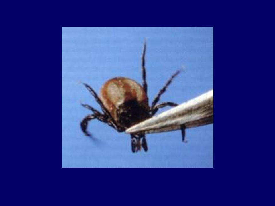 Borelioza z Lyme - obraz kliniczny I okres choroby - faza wczesna miejscowa –pseudochłoniak boreliozowy (borrelial lymphocytoma) Występuje głównie na płatku ucha, na sutku lub na mosznie niebolesny naciek zapalny w miejscu pokąsania przez kleszcza