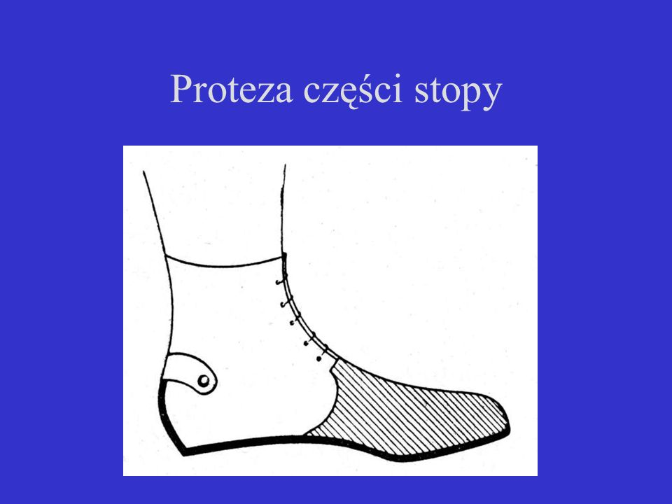 Proteza części stopy