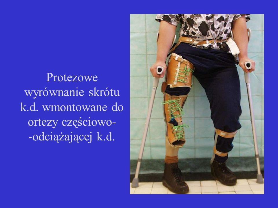 Protezowe wyrównanie skrótu k.d. wmontowane do ortezy częściowo- -odciążającej k.d.
