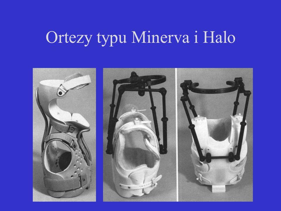 Ortezy typu Minerva i Halo
