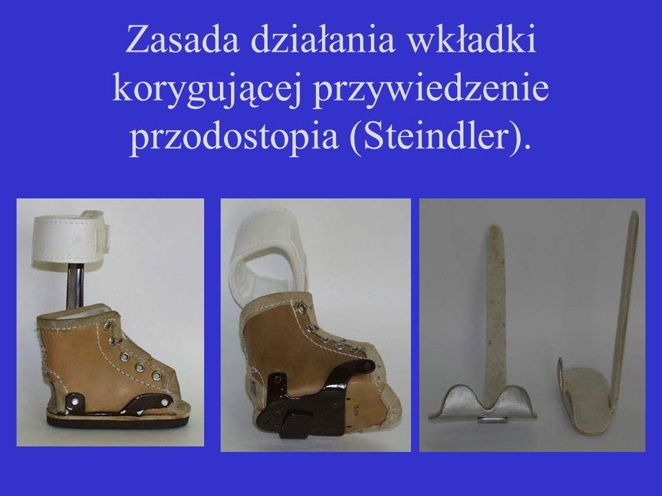 Zasada działania wkładki korygującej przywiedzenie przodostopia (Steindler).