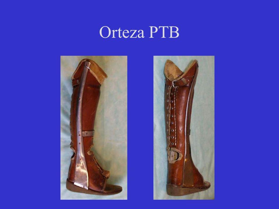 Orteza PTB