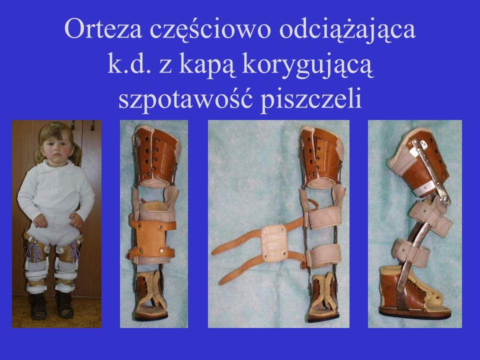 Orteza częściowo odciążająca k.d. z kapą korygującą szpotawość piszczeli