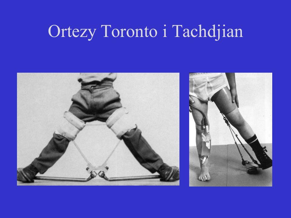 Ortezy Toronto i Tachdjian