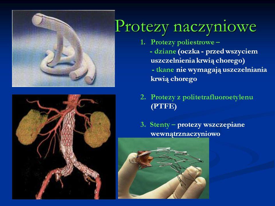 Protezy naczyniowe Protezy naczyniowe 1.Protezy poliestrowe – - dziane (oczka - przed wszyciem uszczelnienia krwią chorego) - tkane nie wymagają uszcz