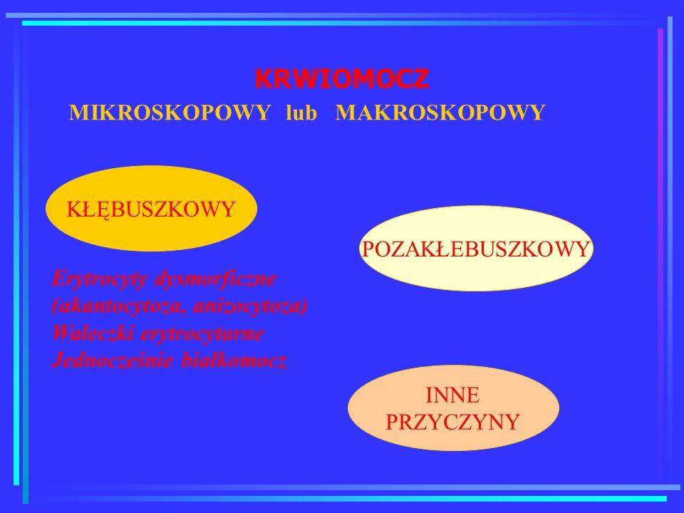 KRWIOMOCZ MIKROSKOPOWY lub MAKROSKOPOWY KŁĘBUSZKOWY POZAKŁEBUSZKOWY INNE PRZYCZYNY Erytrocyty dysmorficzne (akantocytoza, anizocytoza) Wałeczki erytro