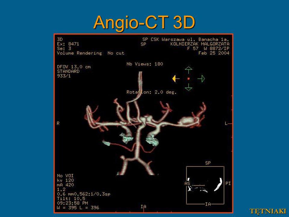 Angio-CT 3D TĘTNIAKI