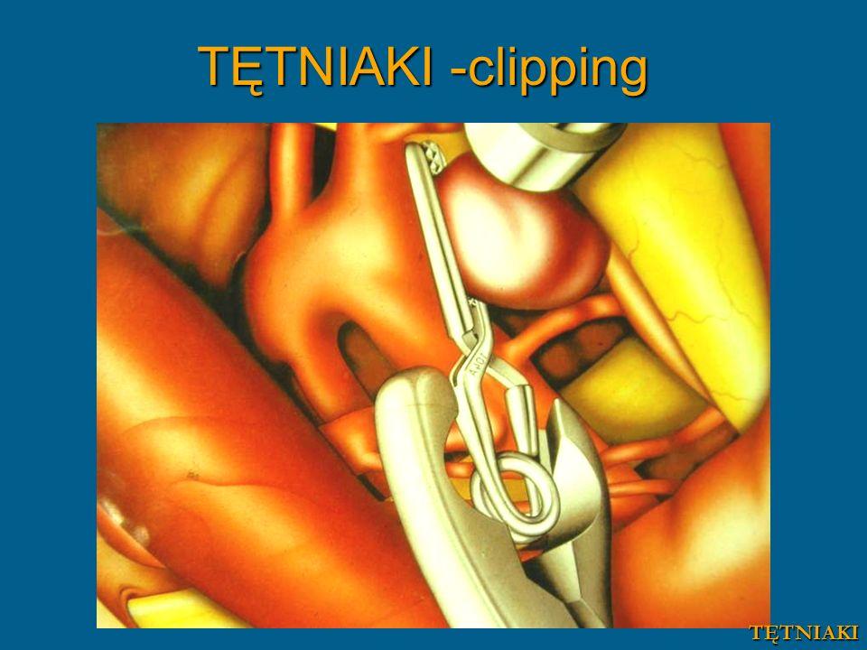 TĘTNIAKI -clipping TĘTNIAKI