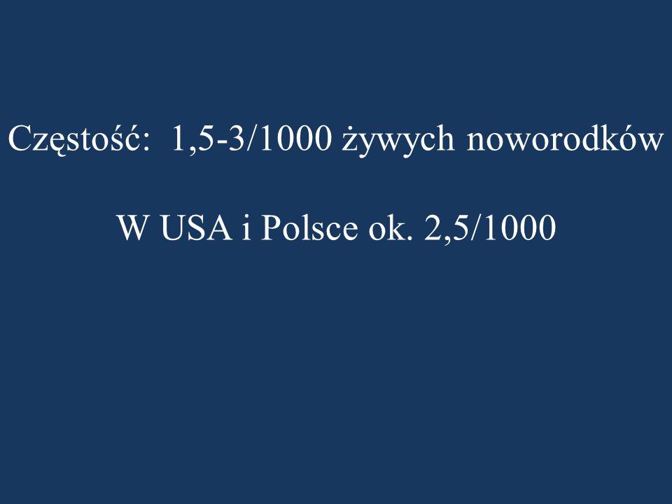Częstość: 1,5-3/1000 żywych noworodków W USA i Polsce ok. 2,5/1000
