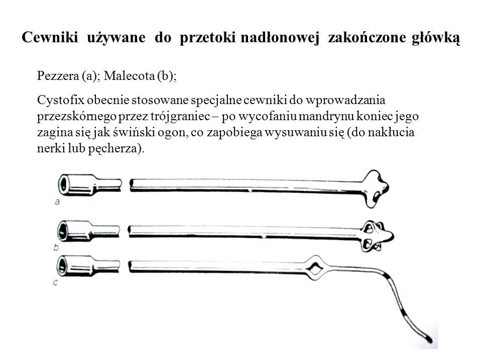 Cewniki używane do przetoki nadłonowej zakończone główką Pezzera (a); Malecota (b); Cystofix obecnie stosowane specjalne cewniki do wprowadzania przez
