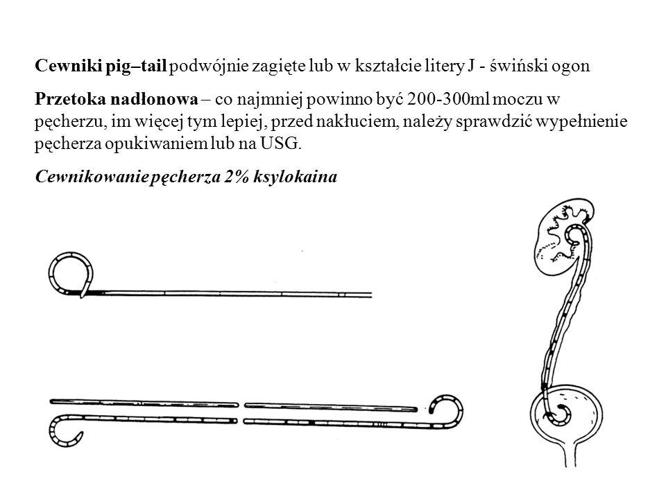 Cewniki pig–tail podwójnie zagięte lub w kształcie litery J - świński ogon Przetoka nadłonowa – co najmniej powinno być 200-300ml moczu w pęcherzu, im