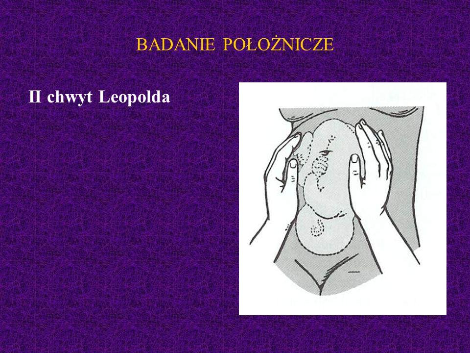 BADANIE POŁOŻNICZE II chwyt Leopolda