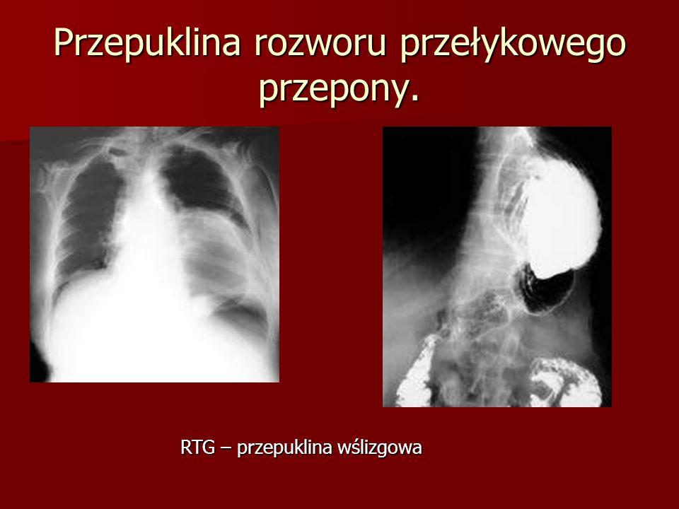 Przepuklina rozworu przełykowego przepony. RTG – przepuklina wślizgowa