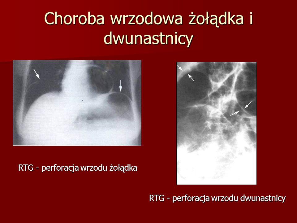 Choroba wrzodowa żołądka i dwunastnicy RTG - perforacja wrzodu żołądka RTG - perforacja wrzodu dwunastnicy