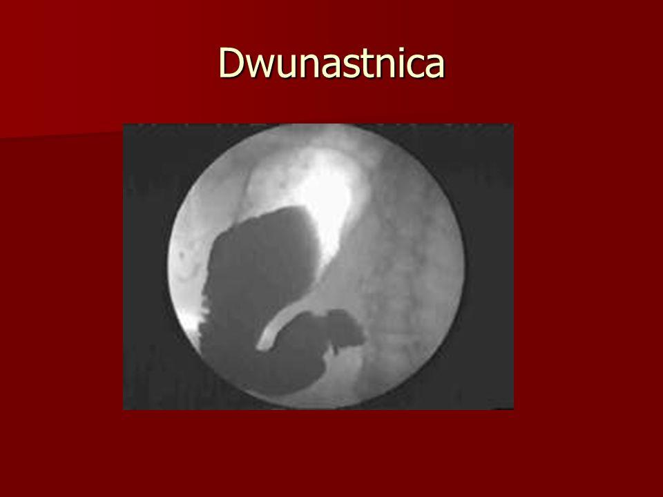 Choroba wrzodowa żołądka i dwunastnicy Powikłania Powikłania –Krwawienie z przewodu pokarmowego( najczęstsze)  Endoskopia- pozwala zlokalizować krwawienie oraz zaopatrzyć miejsce krwawienia.