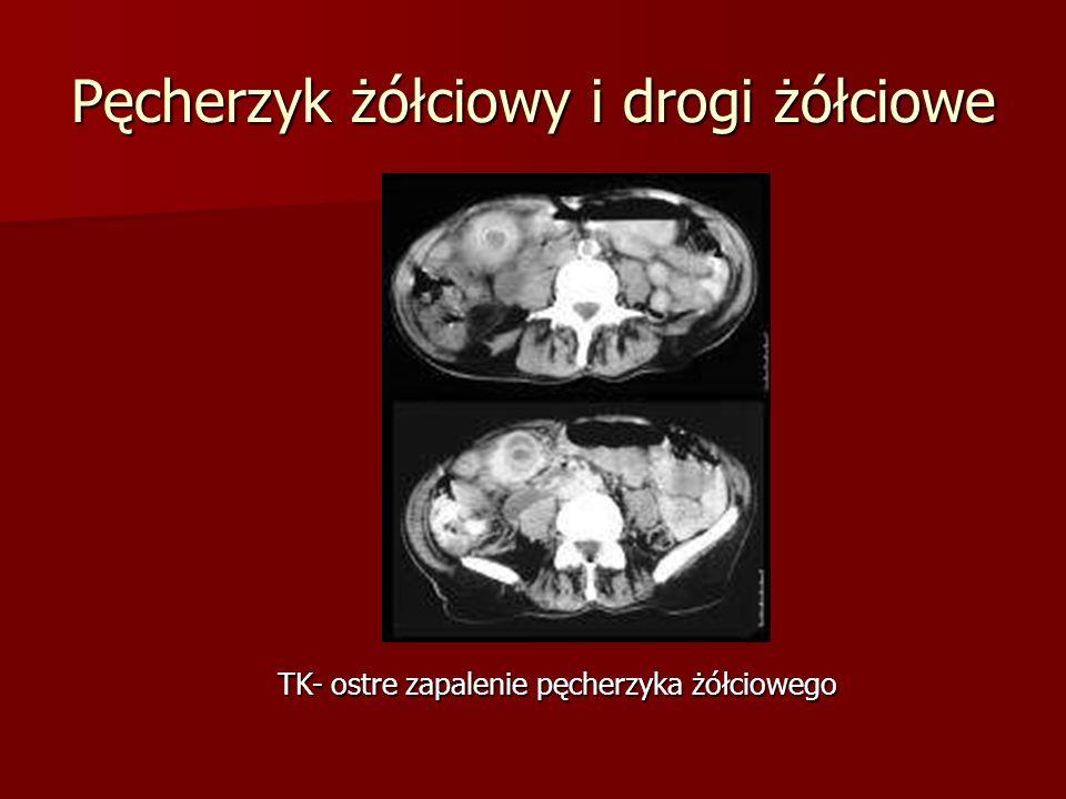 Pęcherzyk żółciowy i drogi żółciowe TK- ostre zapalenie pęcherzyka żółciowego