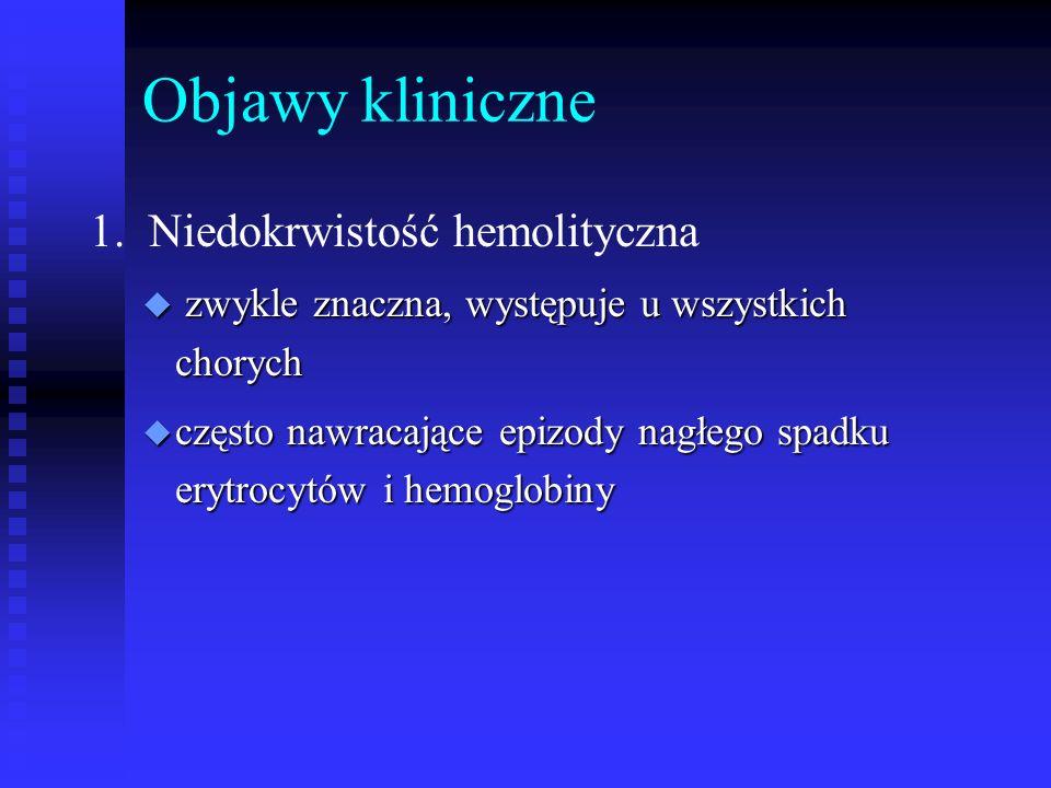 Objawy kliniczne 1. Niedokrwistość hemolityczna u zwykle znaczna, występuje u wszystkich chorych u często nawracające epizody nagłego spadku erytrocyt