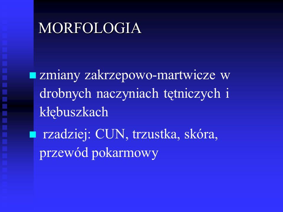 MORFOLOGIA n n zmiany zakrzepowo-martwicze w drobnych naczyniach tętniczych i kłębuszkach n n rzadziej: CUN, trzustka, skóra, przewód pokarmowy