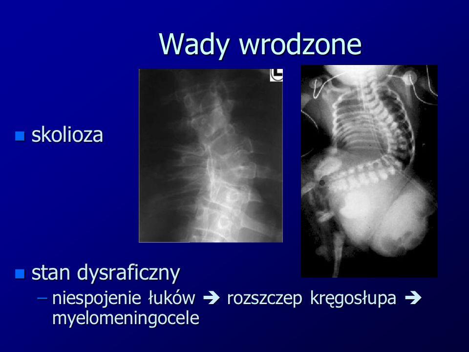 Wady wrodzone n skolioza n stan dysraficzny –niespojenie łuków  rozszczep kręgosłupa  myelomeningocele