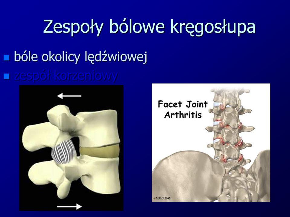 Zespoły bólowe kręgosłupa n bóle okolicy lędźwiowej n zespół korzeniowy