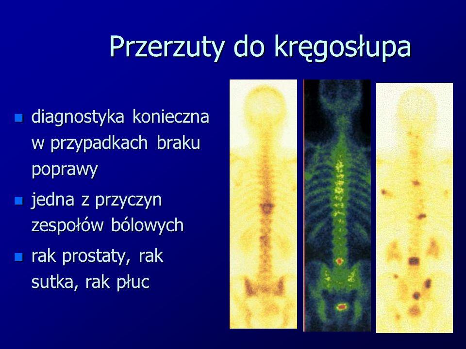 Przerzuty do kręgosłupa n diagnostyka konieczna w przypadkach braku poprawy n jedna z przyczyn zespołów bólowych n rak prostaty, rak sutka, rak płuc