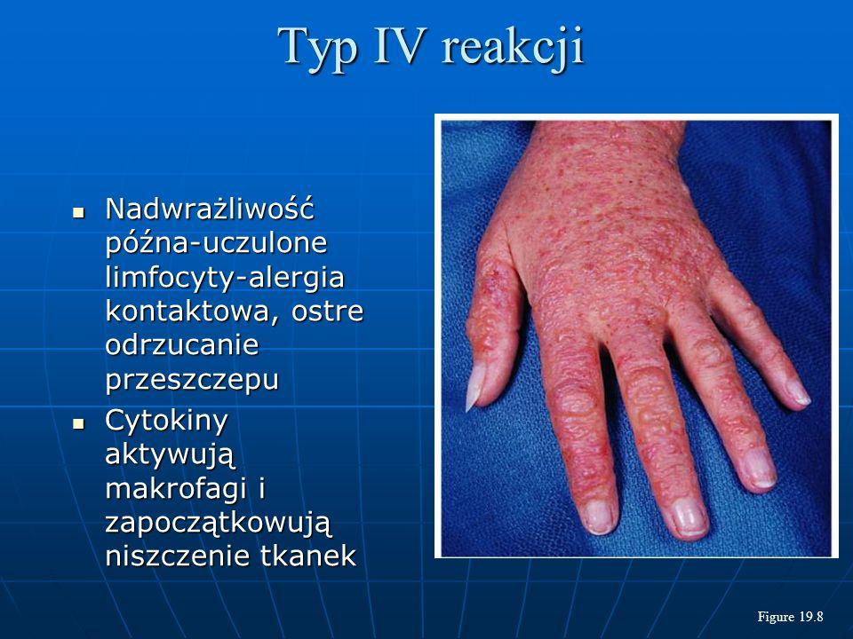 Nadwrażliwość późna-uczulone limfocyty-alergia kontaktowa, ostre odrzucanie przeszczepu Nadwrażliwość późna-uczulone limfocyty-alergia kontaktowa, ostre odrzucanie przeszczepu Cytokiny aktywują makrofagi i zapoczątkowują niszczenie tkanek Cytokiny aktywują makrofagi i zapoczątkowują niszczenie tkanek Typ IV reakcji Figure 19.8