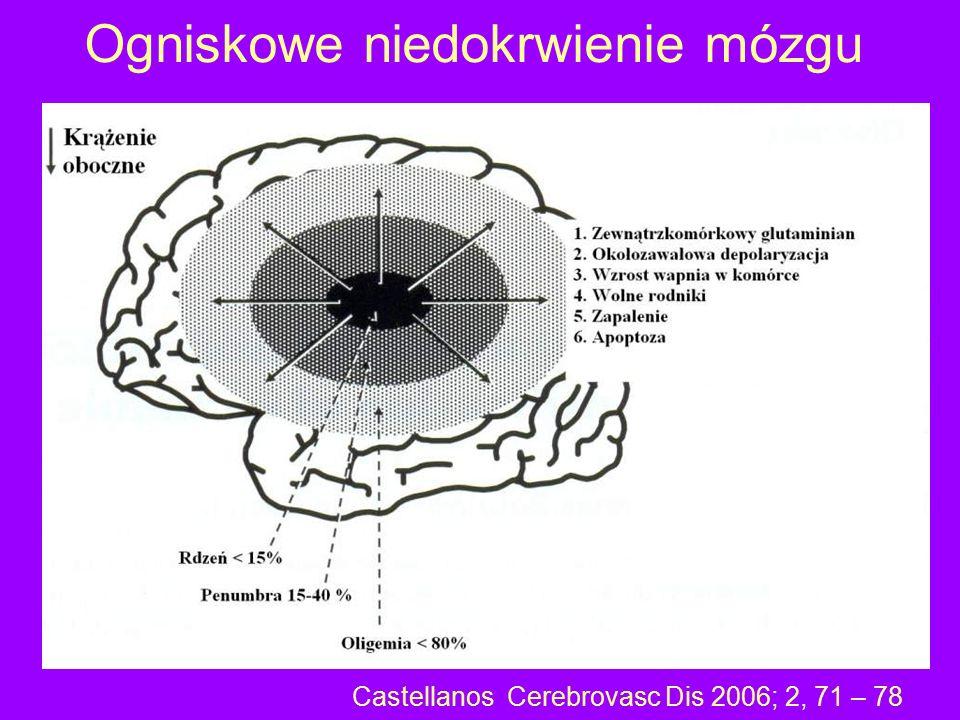 Ogniskowe niedokrwienie mózgu Castellanos Cerebrovasc Dis 2006; 2, 71 – 78