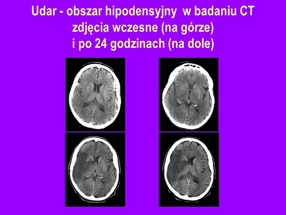 Udar - obszar hipodensyjny w badaniu CT zdjęcia wczesne (na górze) i po 24 godzinach (na dole)