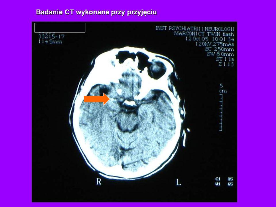 Badanie CT wykonane przy przyjęciu