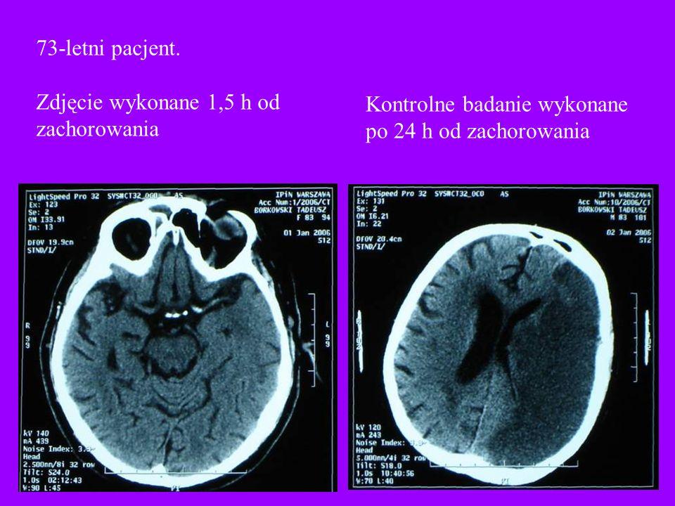 73-letni pacjent. Zdjęcie wykonane 1,5 h od zachorowania Kontrolne badanie wykonane po 24 h od zachorowania