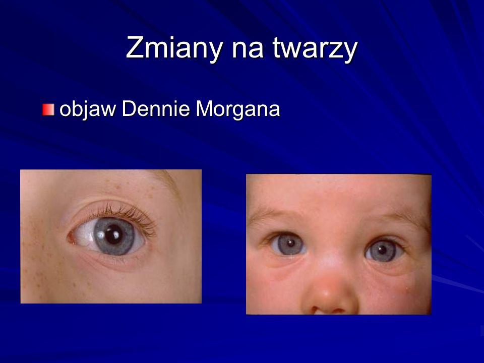 Zmiany na twarzy objaw Dennie Morgana