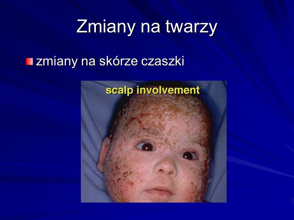 Zmiany na twarzy zmiany na skórze czaszki