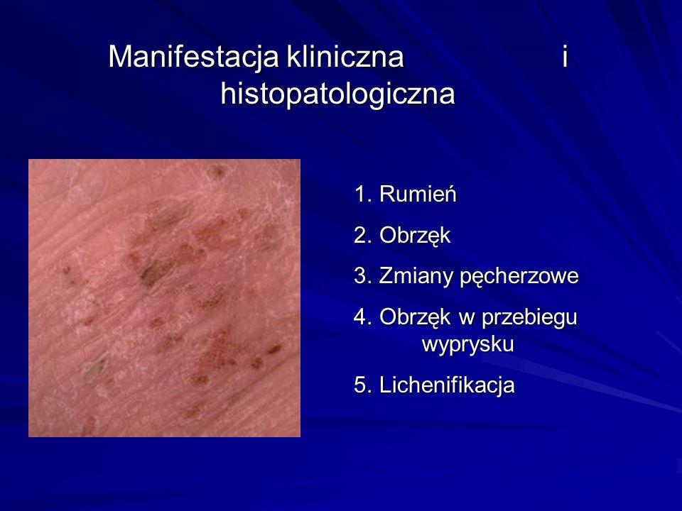 Manifestacja kliniczna i histopatologiczna 1. Rumień 2. Obrzęk 3. Zmiany pęcherzowe 4. Obrzęk w przebiegu wyprysku 5. Lichenifikacja
