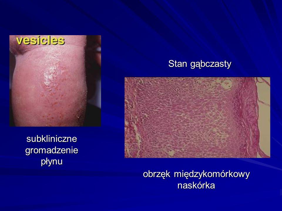 subkliniczne gromadzenie płynu Stan gąbczasty obrzęk międzykomórkowy naskórka