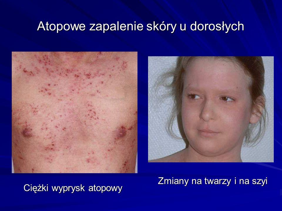 Ciężki wyprysk atopowy Zmiany na twarzy i na szyi Atopowe zapalenie skóry u dorosłych