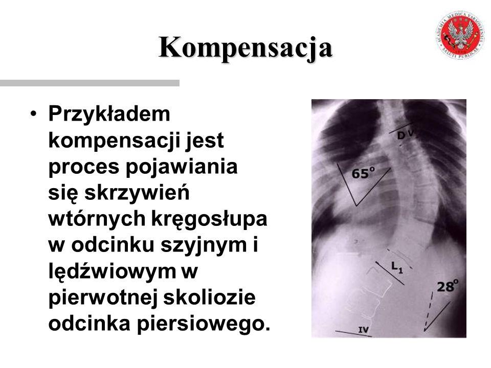 Kompensacja Przykładem kompensacji jest proces pojawiania się skrzywień wtórnych kręgosłupa w odcinku szyjnym i lędźwiowym w pierwotnej skoliozie odci