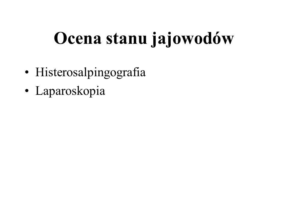 Ocena stanu jajowodów Histerosalpingografia Laparoskopia