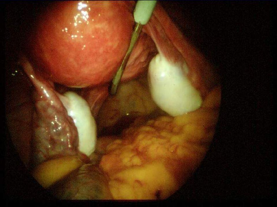 Zespół policystycznych jajników Kryteria rozpoznawcze Obecne 2 z 3 kryteriów PCO ( Rotterdam 2003 rok )  Brak owulacji lub nieregularne miesiączki  Hiperandrogenizm, objawy kliniczne lub biochemiczne (↑ T, ↑ DHEA-S, ↑ A, ↓ SHBG)  Policystyczne jajniki ≥ 12 pęcherzyków (2-9 mm) lub objętość jajnika > 10 ml