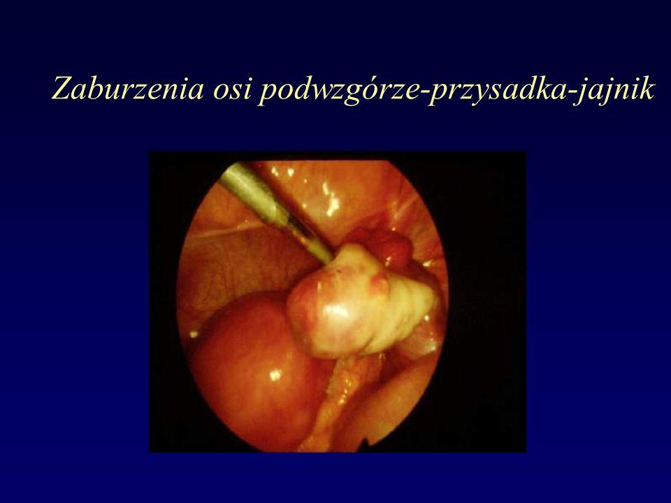 Zaburzenia osi podwzgórze-przysadka-jajnik