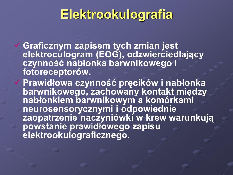 Elektrookulografia Graficznym zapisem tych zmian jest elektroculogram (EOG), odzwierciedlający czynność nabłonka barwnikowego i fotoreceptorów. Prawid