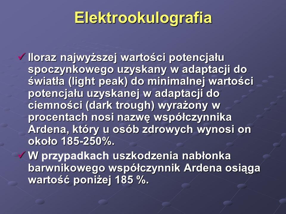Elektrookulografia Iloraz najwyższej wartości potencjału spoczynkowego uzyskany w adaptacji do światła (light peak) do minimalnej wartości potencjału