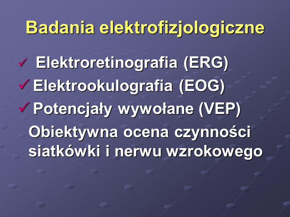 Badania elektrofizjologiczne Elektroretinografia (ERG) Elektroretinografia (ERG) Elektrookulografia (EOG) Elektrookulografia (EOG) Potencjały wywołane