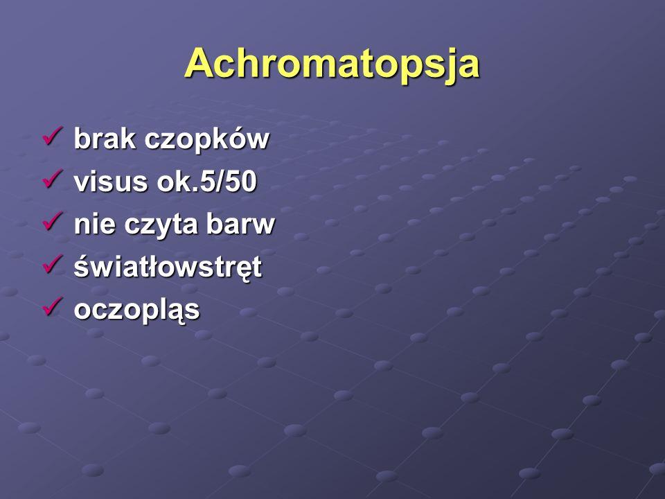 Achromatopsja brak czopków brak czopków visus ok.5/50 visus ok.5/50 nie czyta barw nie czyta barw światłowstręt światłowstręt oczopląs oczopląs