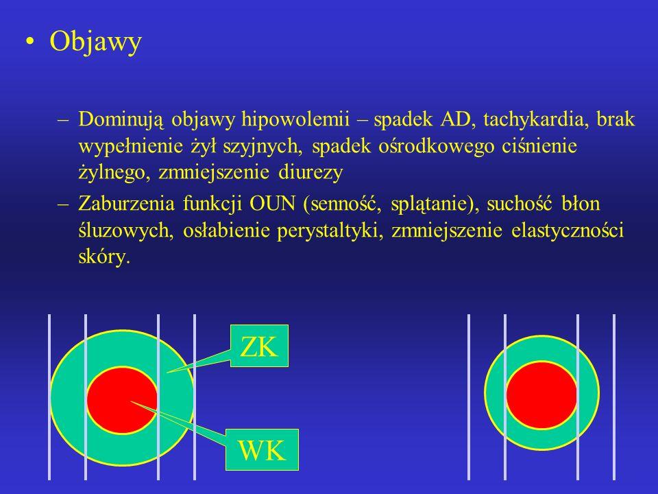 Odwodnienie izotoniczne (↓H20, ↓Na+) utrata wody w równej proporcji z sodem Etiologia: Pokarmowa: wymioty, biegunka, wodobrzusze, przetoki, odsysanie