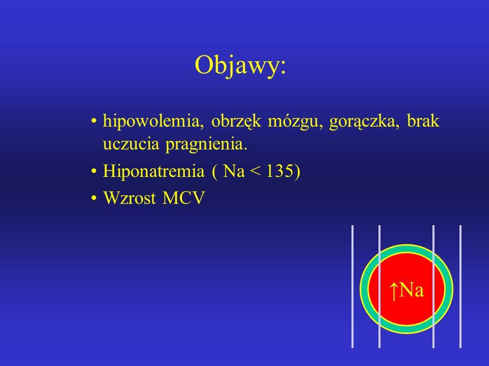 Odwodnienie hipotoniczne Etiologia: Utrata wody i nieproporcjonalnie większa utrata Na przez: –Przewód pokarmowy –Nerki (leki moczopędne, nefropatia z