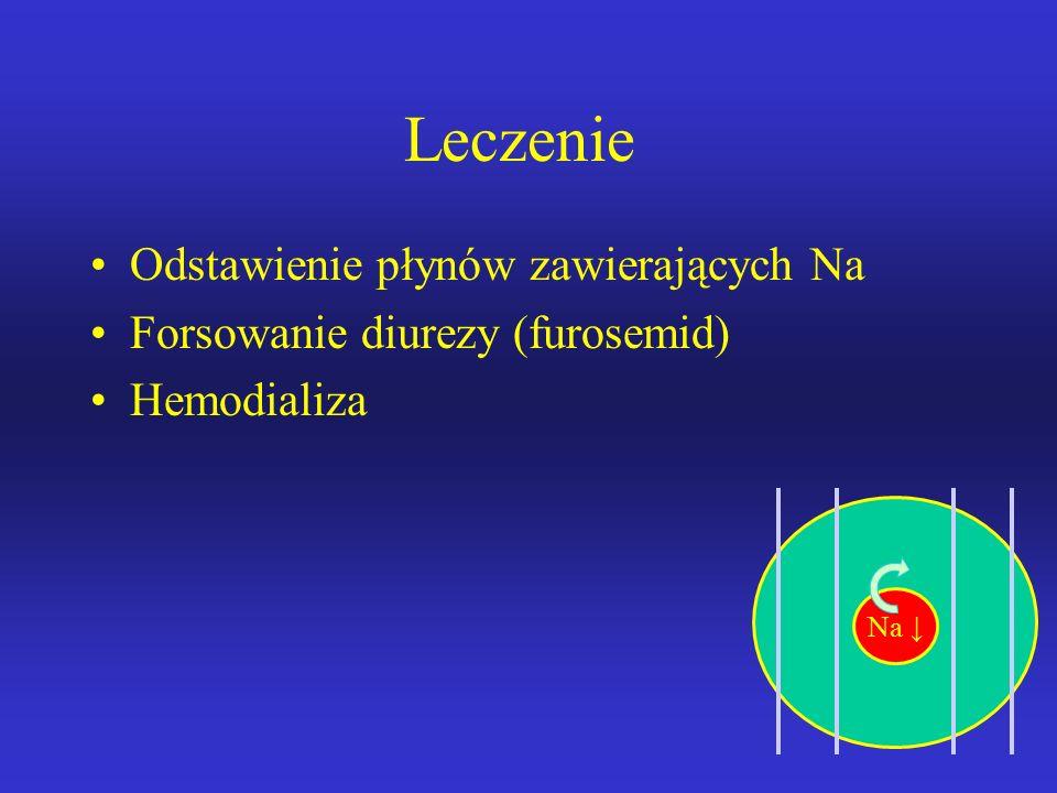Przewodnienie hipertoniczne (H20 , NA+  ) Etiologia -podawanie hipertoniczych płynów chorym z niewydolością nerek -nadmierna podaż wodorowęglanu sod