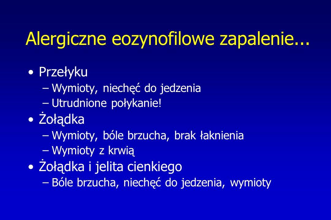 Alergiczne eozynofilowe zapalenie... Przełyku –Wymioty, niechęć do jedzenia –Utrudnione połykanie! Żołądka –Wymioty, bóle brzucha, brak łaknienia –Wym