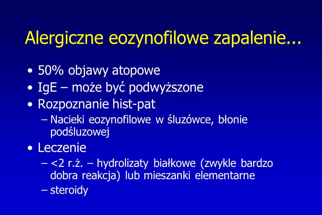 Alergiczne eozynofilowe zapalenie... 50% objawy atopowe IgE – może być podwyższone Rozpoznanie hist-pat –Nacieki eozynofilowe w śluzówce, błonie podśl
